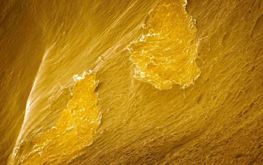 Cibo visto al microscopio: riesci ad indovinare di quale si tratta?